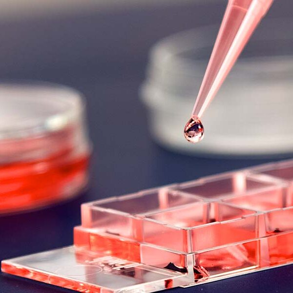 Photo: a drop of resin is being placed into a petri disch with a pipette